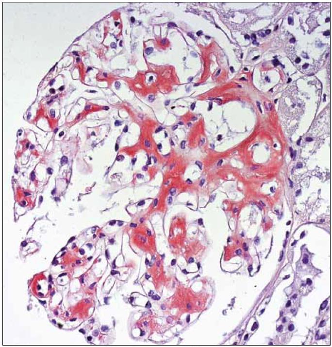 Kongo červeň pozitivní depozita amyloidu v glomerulu. Barvení kongo červeň, zvětšení 40krát.