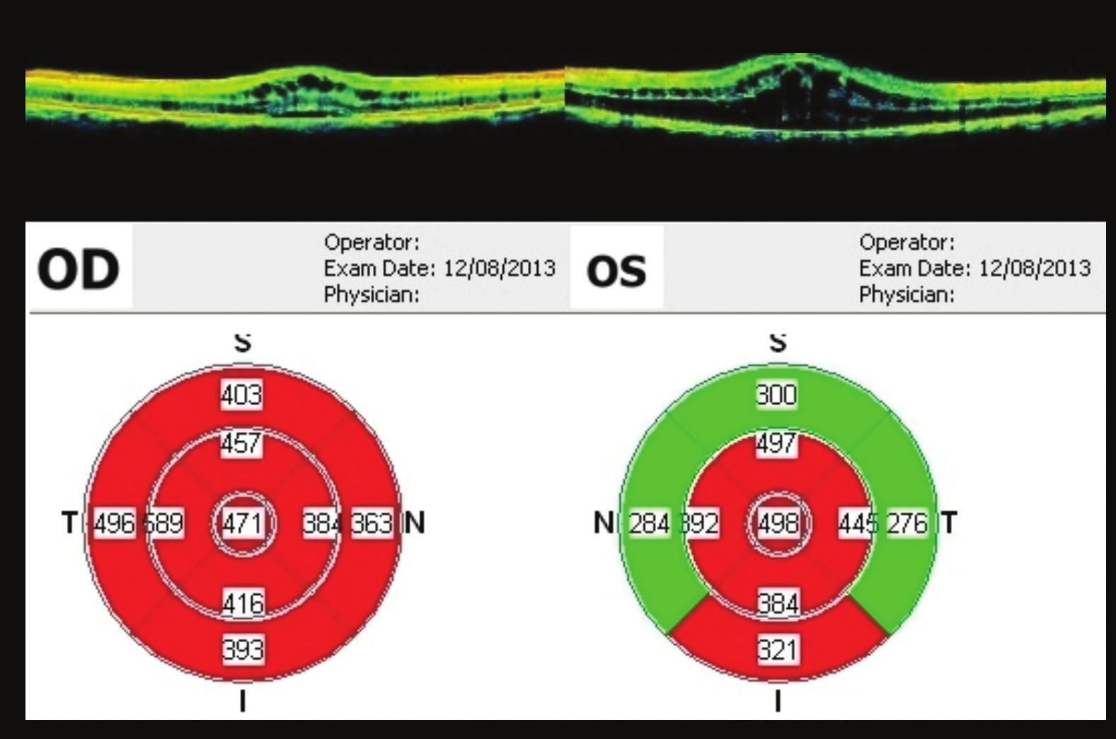 OCT makul 38 týdnů od prvního vyšetření Regrese nálezu – 3 týdny po aplikaci bevacizumabu, OP ve fovee 471 μm, OL 498 um