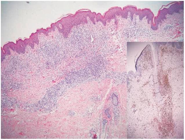 Perivaskulární až nodulární infiltrát lymfocytů v horní polovině koria (HE, původní zvětšení 100krát) V pravém dolním rohu: CD3 – naprostá převaha lymfocytů jsou T subpopulace (CD3 pozitivní) (IHC, původní zvětšení 100krát).