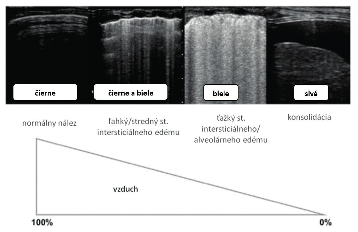 USG obraz pri meniacom sa pomere vzduch:tekutina. V ľavej časti obrázka vidíme normálny LUS nález tvorený len A-líniami (fyziologický nález). Pri postupne klesajúcom pomere vzduchu a narastajúcom obsahu vody dochádza k objaveniu sa B-línií – pri nižšom objeme od seba oddelených (B7- až B3-línie), neskôr splývajúcich do celku (biele pľúca – Birolleauov variant). V pravej časti obrázku vidíme obraz komprimovaných nevzdušných pľúc (echogénna časť) pri pleurálnom výpotku (anechogénna časť), upravené podľa [4]. Fig. 4. LUS image in changing air:fluid ratio. In left part of the picture normal LUS with A-lines shown (physiologic finding). With further fluid progression (air decreasing and fluid increasing) B-lines occur with variability from B7 to B3-lines to diffuse picture (Birolleau variant). On the right side of picture consolidated airless lungs (echogenic part) with plerual effusion (anechogenic part) are visible, modification by [4].