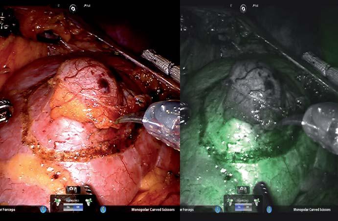 Obr. 1. A – zobrazení renálního tumoru pomocí bílého světla, B – NIRF zobrazení téhož tumoru s jasně rozlišeným (zeleně) fluoreskujícím normálním parenchymem a nefluoreskujícím (tmavým) renálním tumorem.