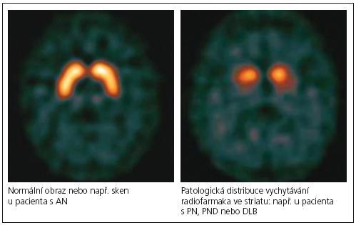 """Rozdíl mezi normální a patologickou distribucí a intenzitou vychytávání radiofarmaka ve striatu [54]. Obrázek volně dostupný na <a href=""""http://www.epda.eu.com"""">www.epda.eu.com</a>."""