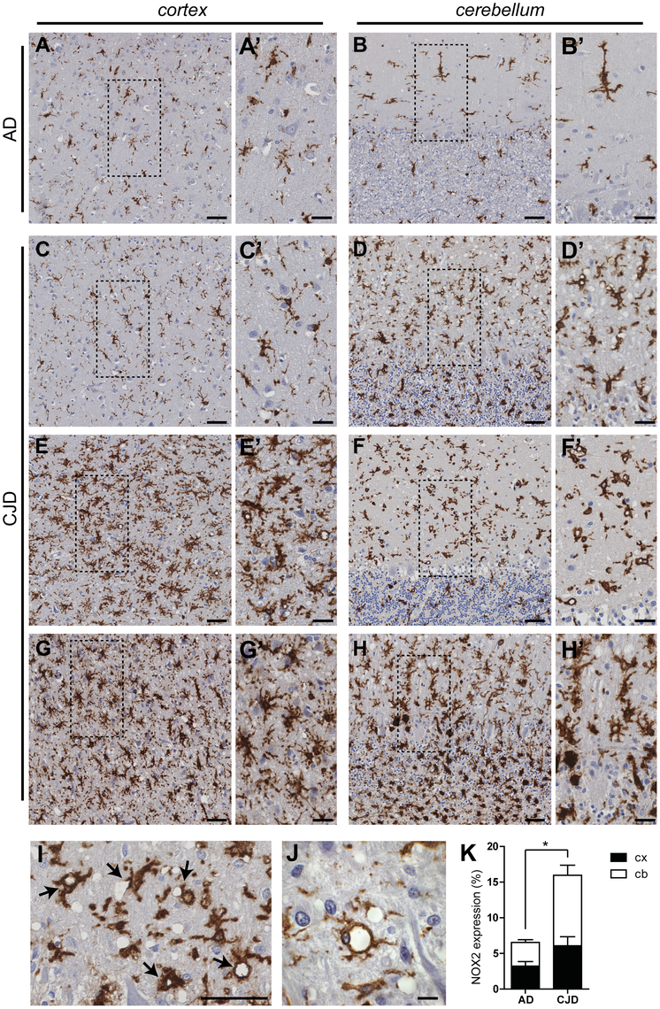 NOX2 expression is increased in affected brain regions of CJD patients.