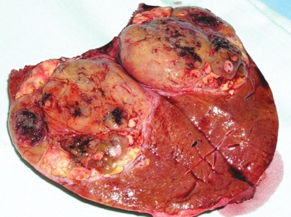 Metastáza renálního karcinomu v pravém laloku jater Fig. 3. Renal carcinoma metastasis in the right liver lobe