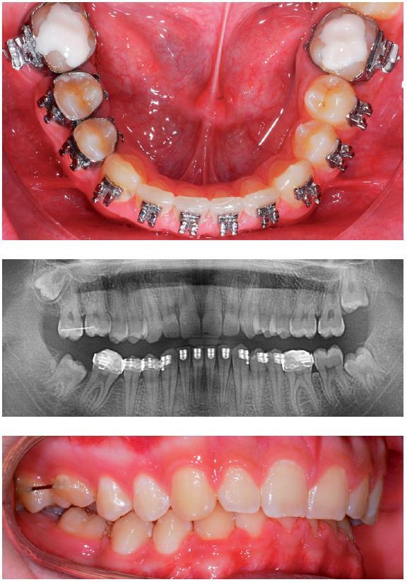 Obr. 13–15. Výsledek ortodontické úpravy dolního zubního oblouku