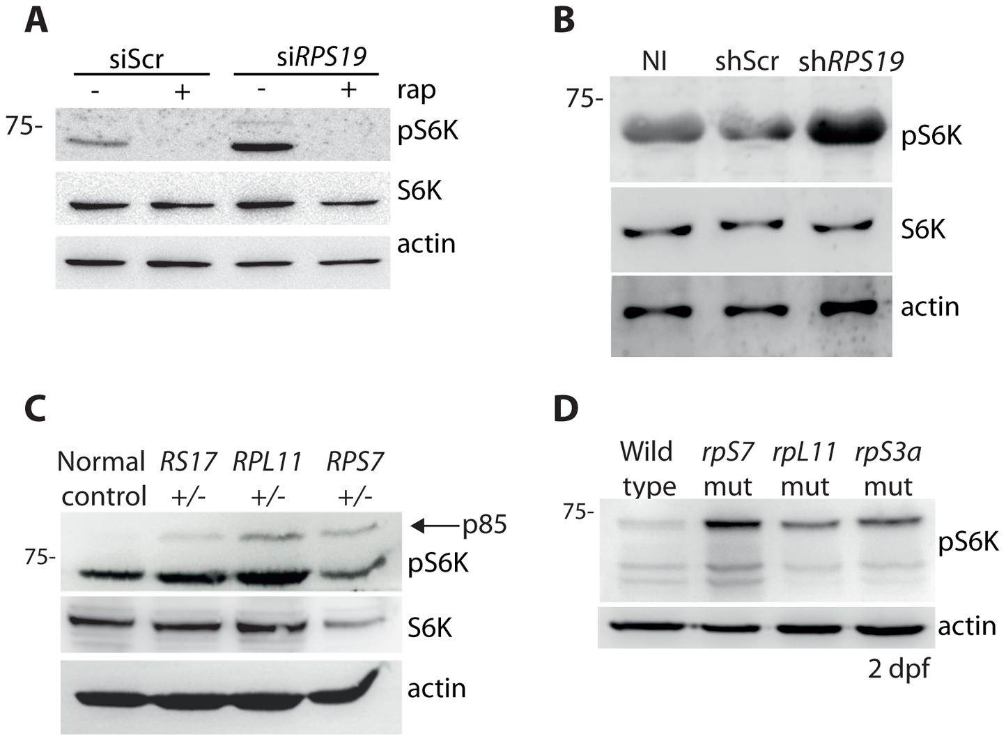 RP loss increases phospo-S6 kinase signaling.