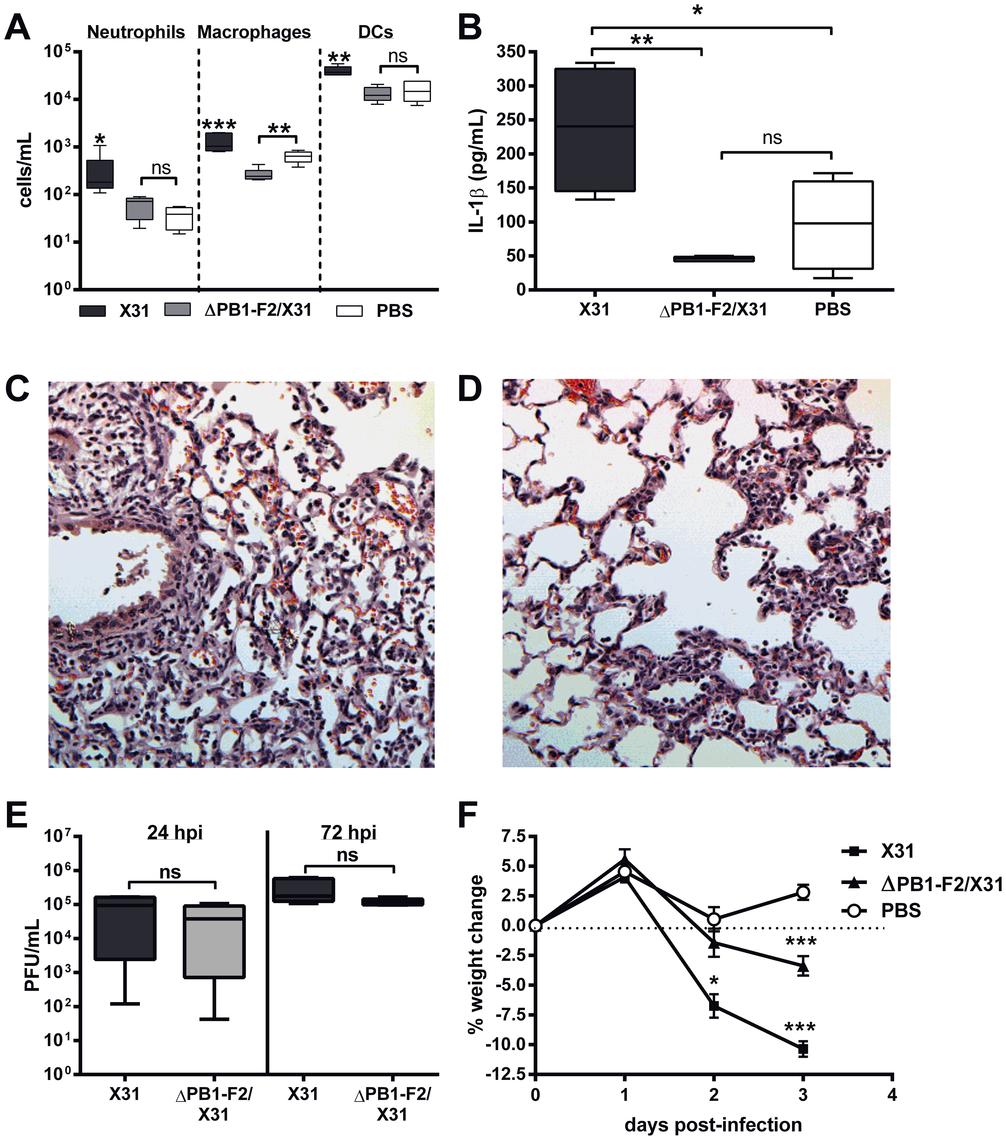 PR8 PB1-F2 increases cellularity and IL-1β secretion during infection in the lungs.