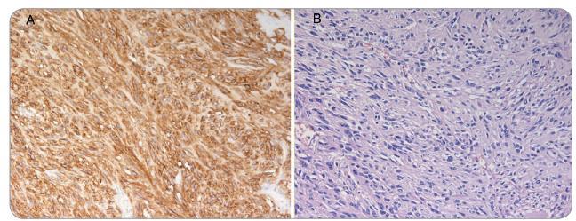 A – barvení HE – vřetenobuněčný GIST s cytonukleárními atypiemi, B – CD117 (c-Kit) – silná difuzní plazmatická a membránová pozitivita.