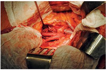 Implantovaná bifurkační cévní protéza do aorto-bifemorální pozice po resekci vaku aneuryzmatu břišní aorty
