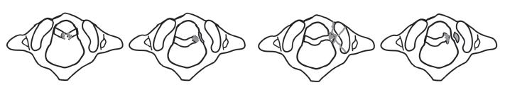 Poranění lig. transversum atlantis podle Dickmana et al. Typ I ruptura vazu - nahoře, typ II s kostěným fragmentem - dole.
