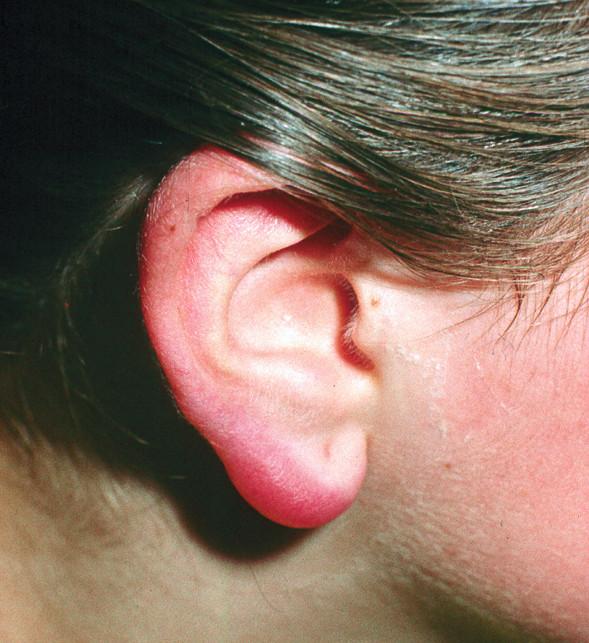Lymfocytom na uchu