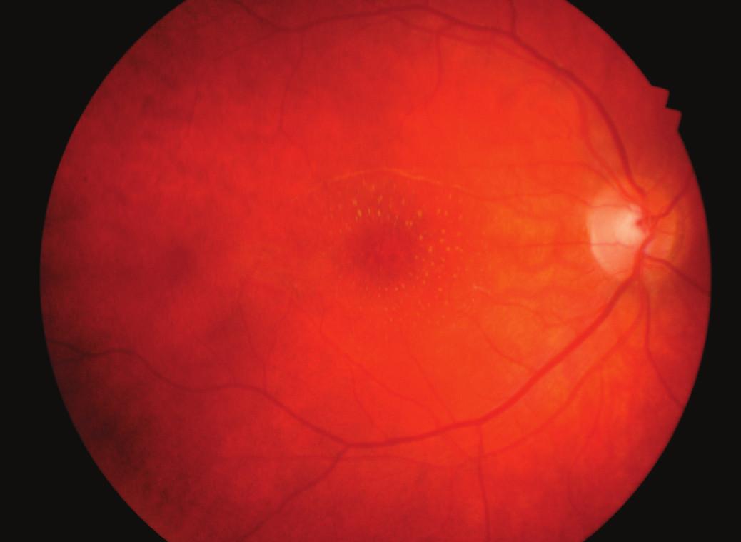 Hvězdicová makulopatie pravého oka měsíc po léčbě
