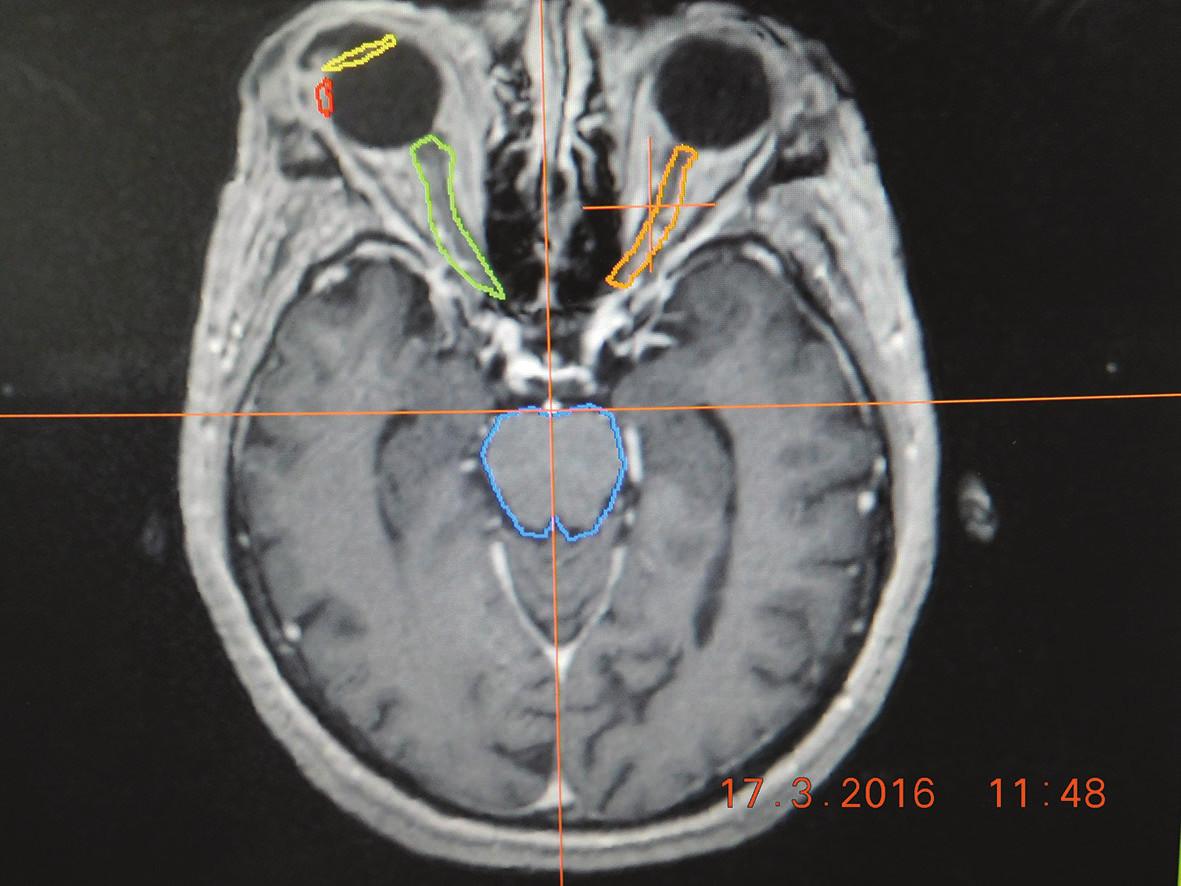 Zameriavacie MRI vyšetrenie pacienta pred stereotaxiou so zakreslením nádorového ložiska (červená farba), a rizikových štruktúr - šošovky (žltá farba), zrakový nerv (zelená  a oranžová farba), mozgový kmeň (modrá farba)