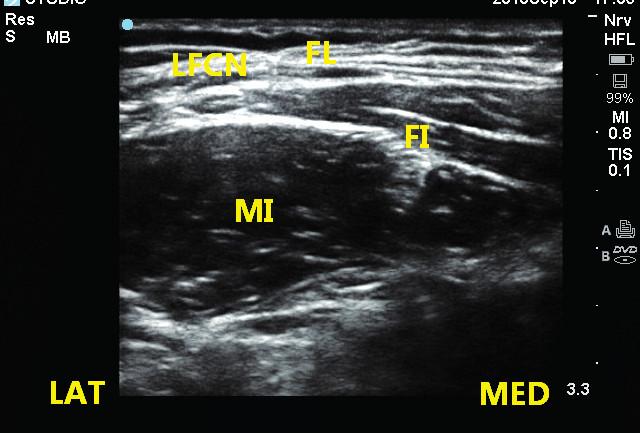 Obr. 2a, 2b Provedení ultrazvukem naváděného fascia iliaca bloku Sonda je položena rovnoběžně pod tříselným vazem a jehla je pomocí IP techniky zavedena laterálně od nervus femoralis pod fascia iliaca. LFCN – n. cutaneus femoris lateralis, FL – fascia lata, FI – fascia iliaca, IM – m. iliacus.