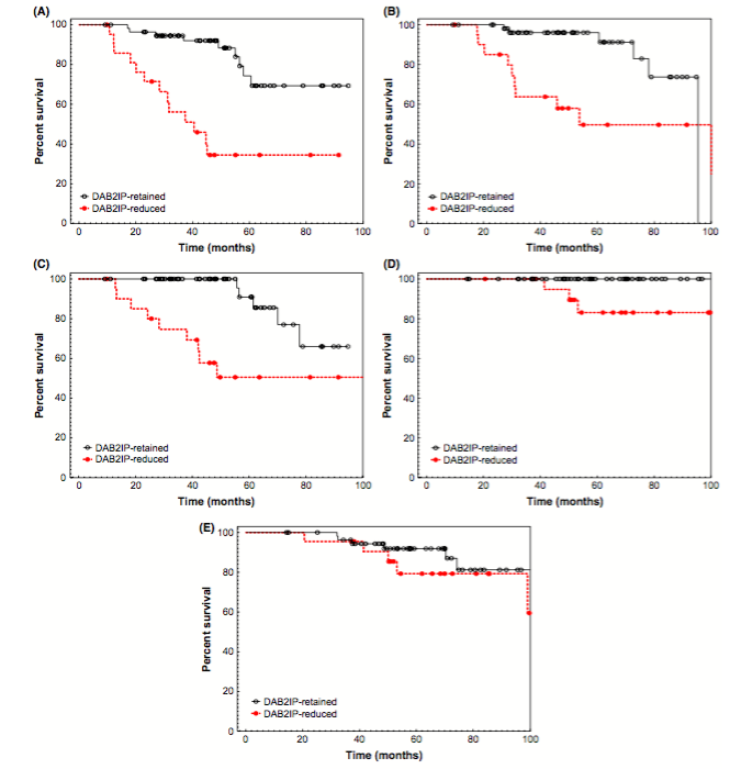 Figure 1. Kaplan–Meier and log-rank analysis comparing (A) freedom from biochemical failure, (B) castration resistance-free survival, (C) distant metastasis-free survival, (D) prostate cancer-specific survival, and (E) overall survival based on pretreatment tumor DAB2IP status.