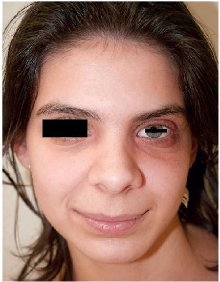 Nález po léčbě itrakonazolem