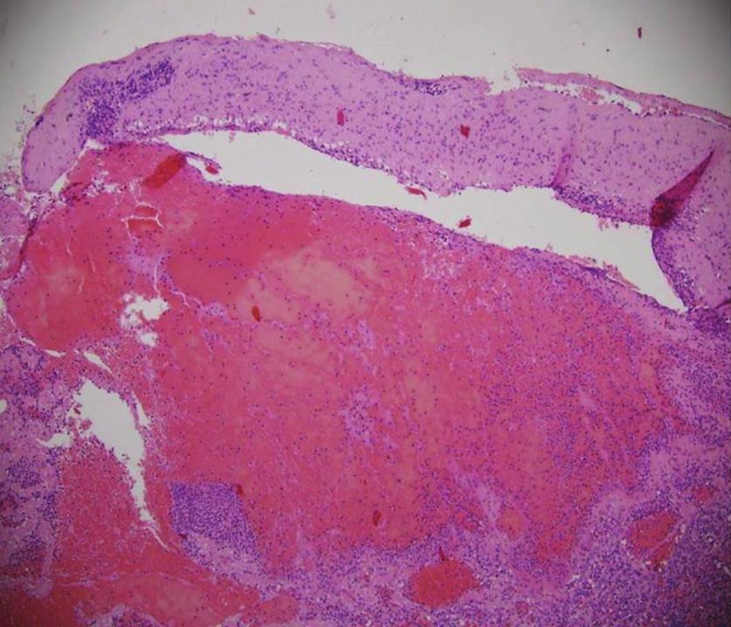 Histologický obraz lacerace sleziny s hematomem