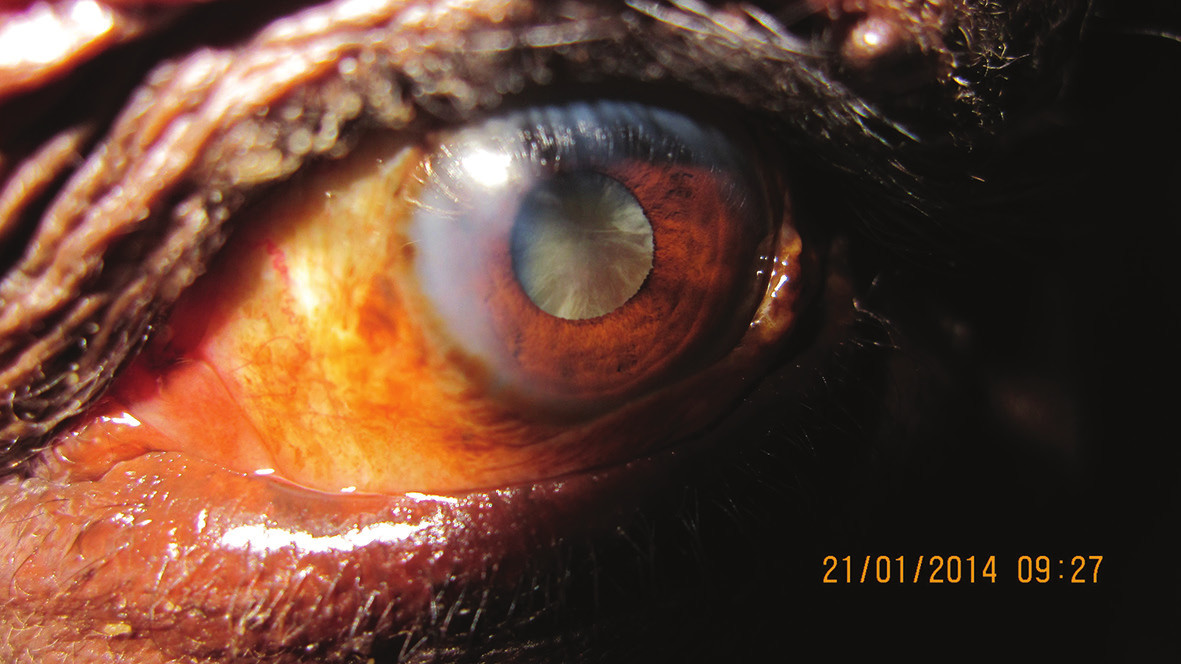 Makrofoto predného segmentu oka pacienta s kataraktou