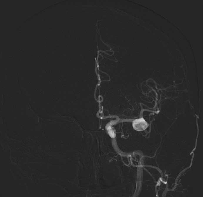Digitální subtrakční angiografie potvrdila nález široce nasedajícího aneuryzmatu ve větvení M1/2 vlevo s fundem směřujícím dopředu. Krček aneuryzmatu je široký 8 mm.