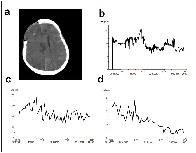Mikrodialýza u pacientky se subarachnoidálním krvácením a edémem mozku. CT mozku pacientky po zasvorkování prasklého aneuryzmatu střední mozkové arterie vpravo. Vzhledem k perioperačnímu edému byla vlastní kraniotomie široká a kostní ploténka nebyla na konci operace vrácena. Mikrodialyzační katétr je patrný v pravém frontálním laloku (a). I přes relativně dobré hodnoty tkáňové oxymetrie (b) je patrná probíhající ischemie mozkové tkáně dle vysokých hodnot LP poměru (c) a rychlému poklesu koncentrací glukózy.