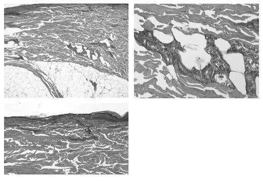 Fig. 7. The eccrine glands underneath some areas of epidermal and dermal necrosis were quite well preserved, with only mild signs of necrosis.