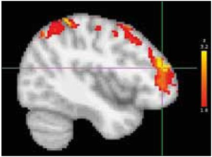 Fig. 3. BoNT treatment effect in group B: location, dorsolateral prefrontal cortex (DLPFC) of the most significant decrease of activation after BoNT treatment (group post-hoc contrast overlaid on the MNI anatomical template).