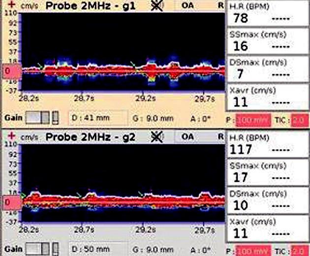 TCD záznam na a. opthalmica zobrazuje nízkou maximalní systolickou a diastolickou rychlost (SSmax, Dsmax) a nízkou průměrnou maximální rychlost (Xavr)