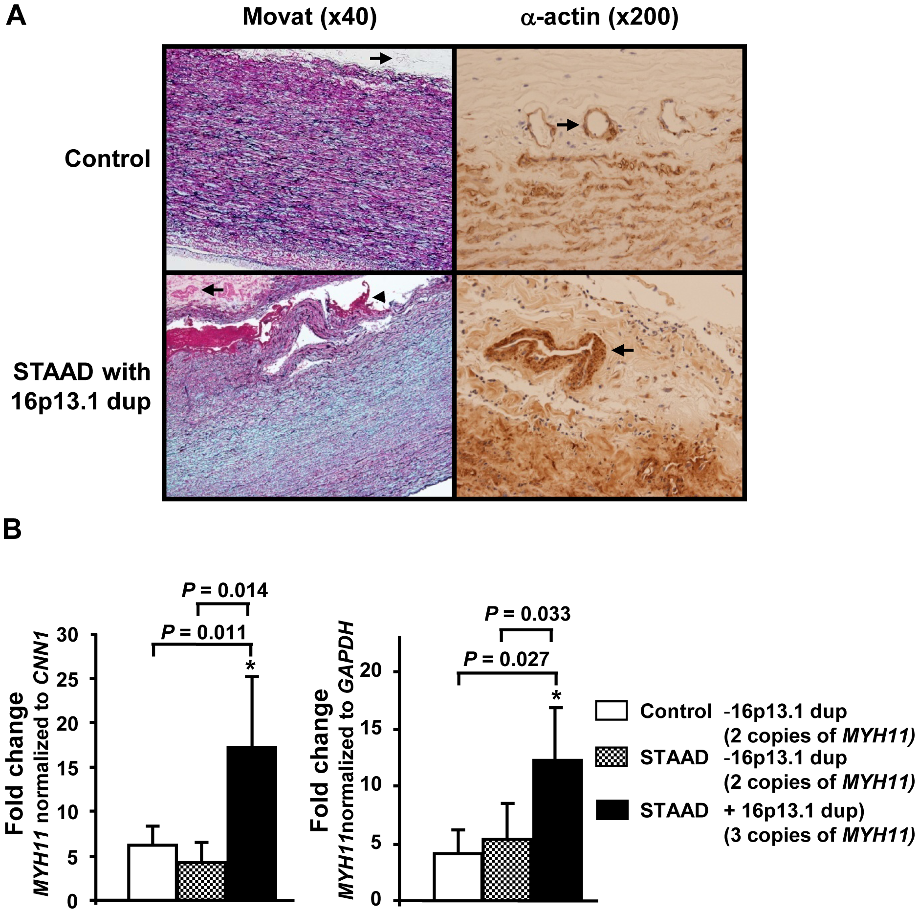 Pathological abnormalities and <i>MYH11</i> expression levels in aortic tissue associated with 16p13.1 duplication in patients with staad.