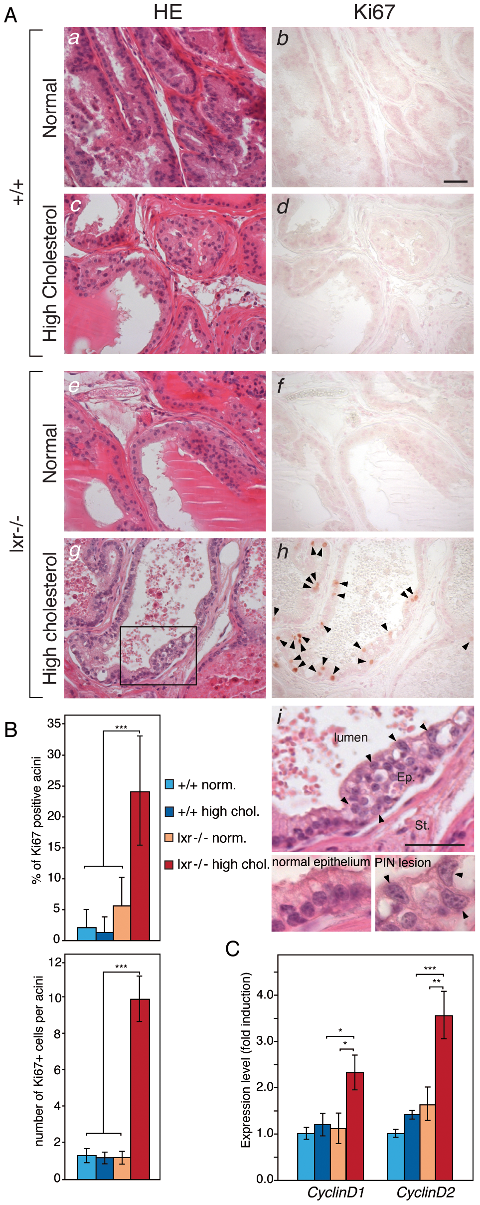 High-cholesterol diet induces proliferation in LXR mutant mouse prostate.