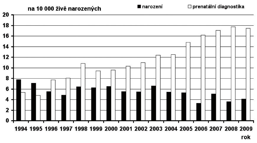 Prevalence Downova syndromu v České republice v období 1994–2009, prenatálně a postnatálně diagnostikované případy Fig. 13. Prevalence of Down syndrome in the Czech Republic in 1994–2009, prenatally and postnatally diagnosed cases