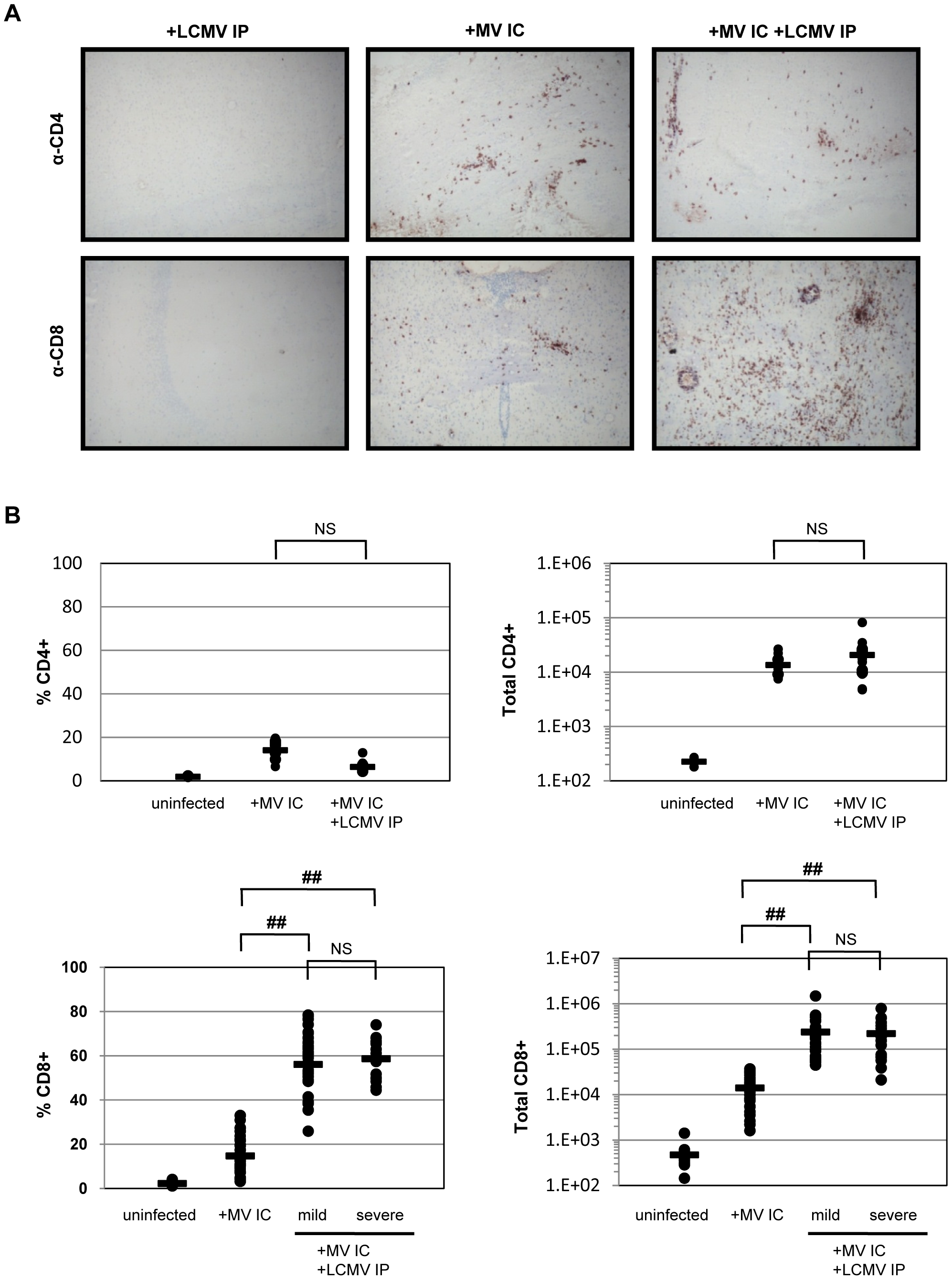 Immune response within the brains of co-infected mice.