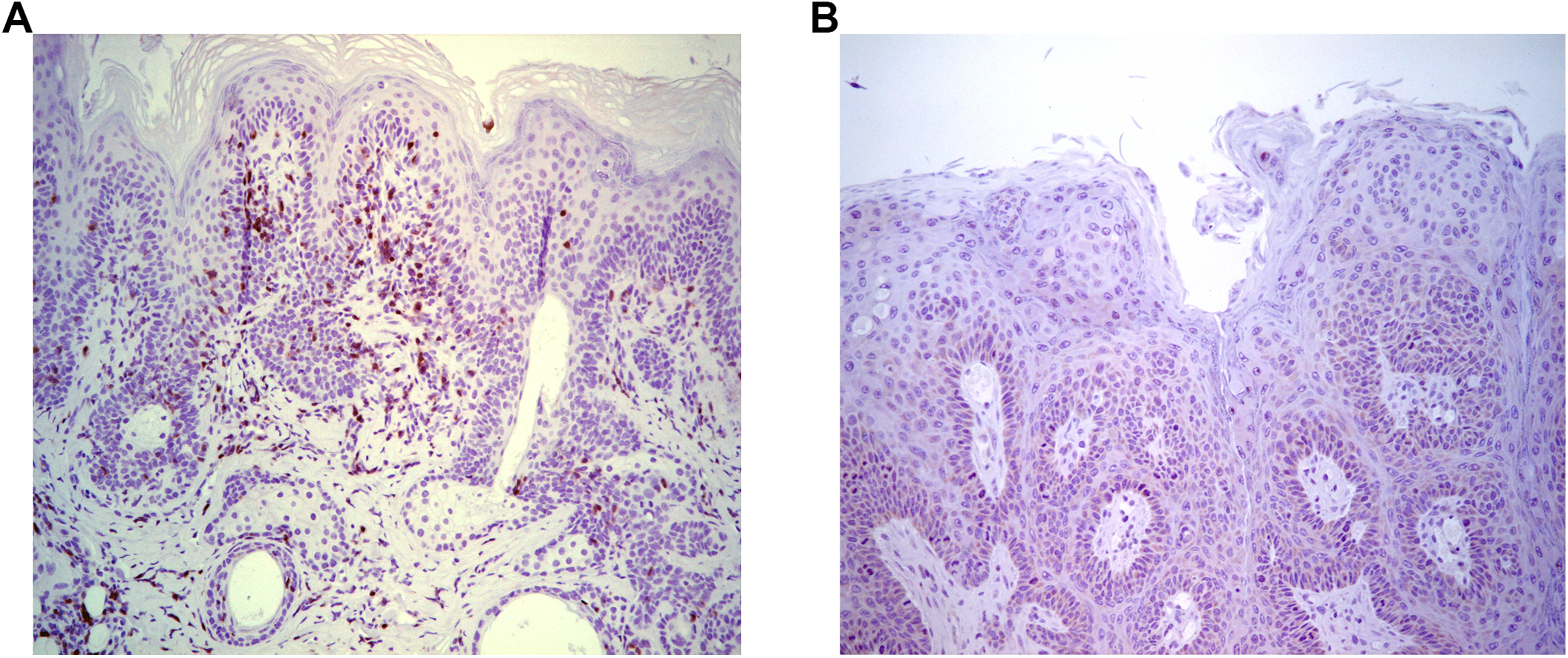 Infiltration of T cells into papilloma site associated with MusPV1 papilloma regression.
