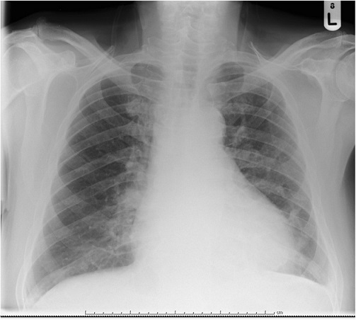 Chest radiogram showing small left-sided pleural effusion