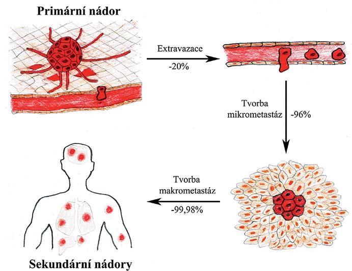 Selekce v průběhu metastatické kaskády. Jednotlivé fáze metastazování připomínají darwinovskou selekci s nejkritičtějšími kroky v závěru celého procesu, kdy se nádorové buňky musí adaptovat v novém prostředí a iniciovat proliferaci.