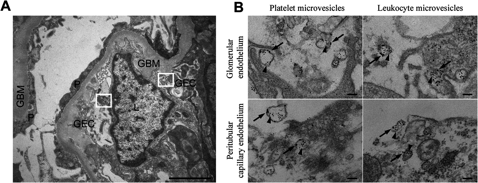 Stx2-containing blood cell-derived microvesicles detected in the renal cortex of a HUS patient.