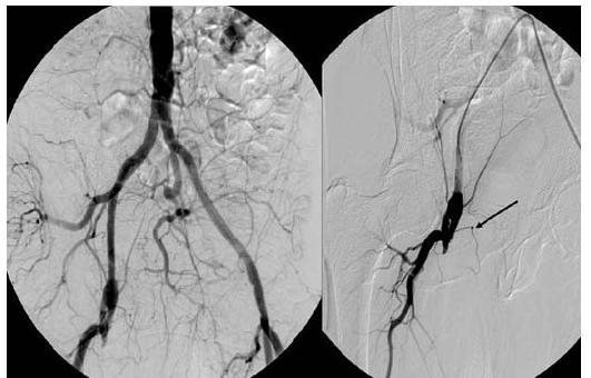 Angiografie pánevních a femorálních tepen při přijetí – uzávěr femoropopliteálního bypassu v odstupu vpravo (šipka).