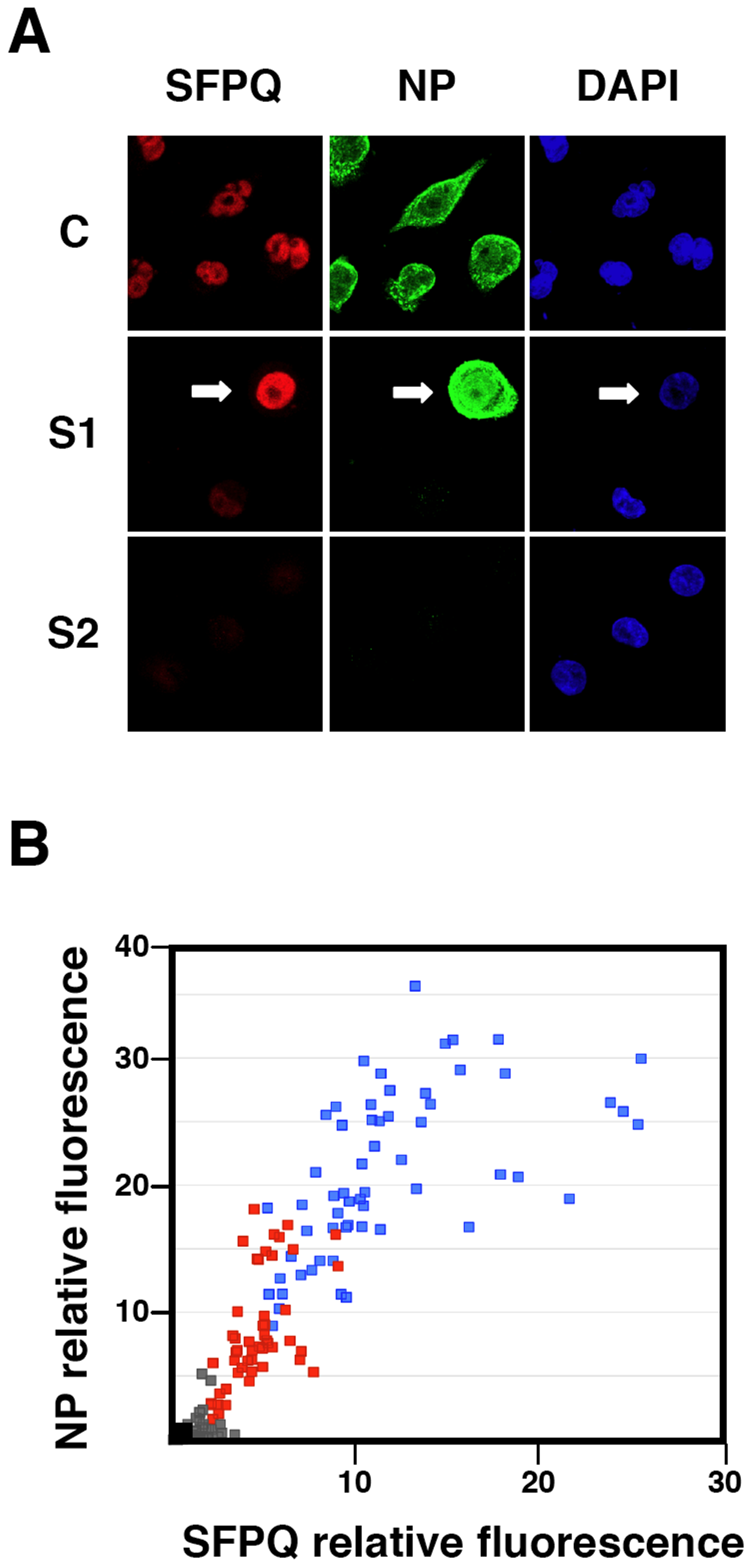 Cytological analysis of influenza virus infection of SFPQ/PSF-silenced cells.