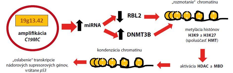 Malígna transformácia pri ETMR amplifikáciou <i>C19MC</i>