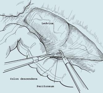 Laterokolické otevření zadního peritonea.