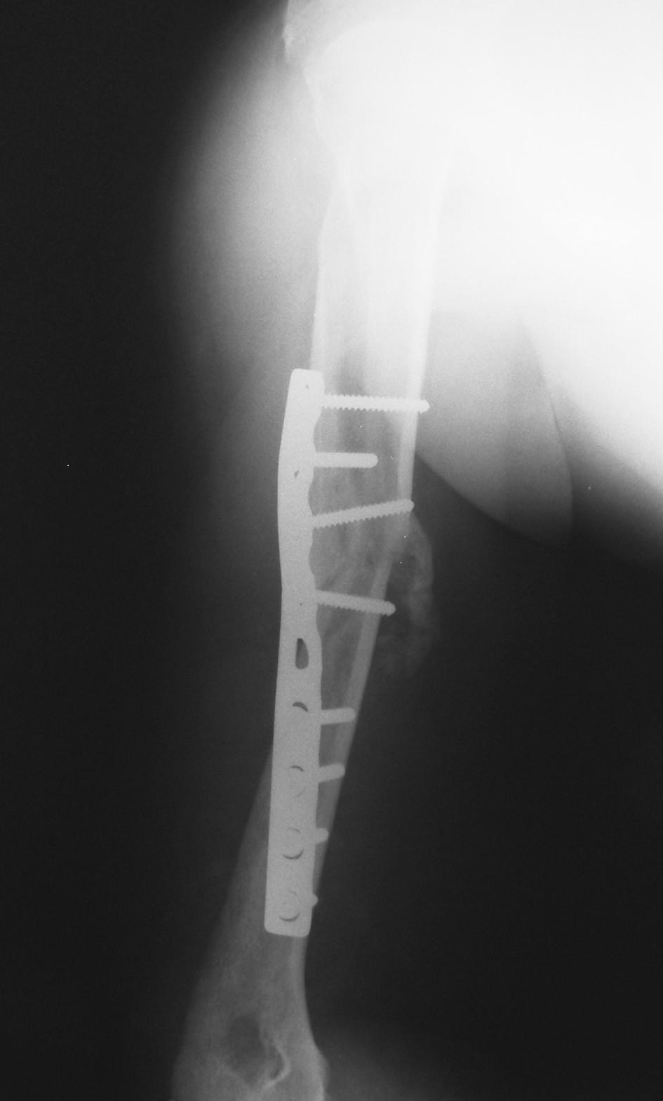 Pooperační RTG snímek ošetření pakloubu dynamickou kompresní dlahou Fig. 2. Postoperative X-ray picture of nonunion treated by dynamic compression plate