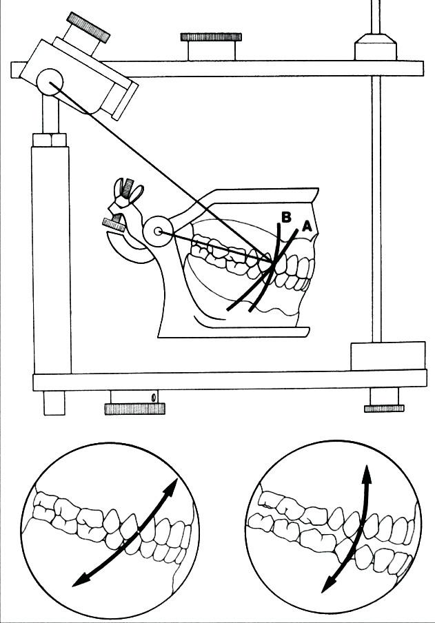 Korektně individualizovaná velikost ramen Bonwillova trojúhelníku při montáži modelů v artikulátoru A, neprávná montáž v okludoru B (obrázek převzat . Rosenstiel, S. F., Land, M. F., Fujimoto, J.: Contemporary fixed prosthodontics. Mosby, 1995)