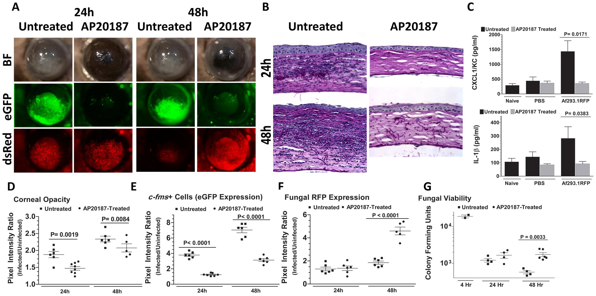 The role of macrophages in <i>A. fumigatus</i> keratitis.