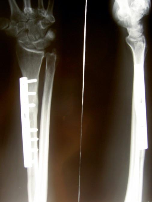 Obr. 2a - 31letá žena, autohavárie, otevřená zlomenina typu IIIB, 2b - primární stabilizace zevním fixátorem, 2c - konverze na dlahovou osteosyntézu po 4 týdnech
