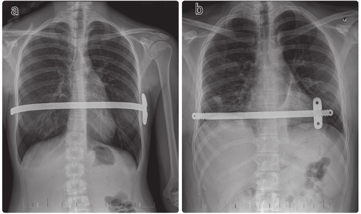 "RTG nález u pacientov po MIRPE a) Pacient po štandardnej MIRPE b) Pacient po ""short-bar"" technike Fig. 6: Chest X-ray in MIRPE patients a) CXR after standard MIRPE procedure b) CXR after ""short-bar"" technique"