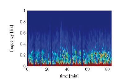Spectral signal representation of the heart rate variability trough short time Fourier transform (pat03): noisy spectrum.