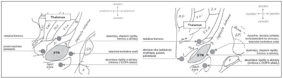 Obr. 16. Anatomicko-funkční mapa bazálních ganglií v okolí STN (upraveno dle [18]). Jednotlivé anatomické oblasti a jejich vztah ke klinické odpovědi na intraoperační stimulaci. a) sagitální rovina; b) koronální rovina