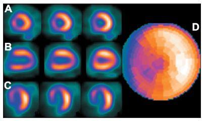Studie pacienta s LBBB – zobrazuje se arteficiální defekt perfuze v oblasti septa na vybraných tomografických řezech (A – SA, B – VLA, C – HLA) a polární mapě (D).
