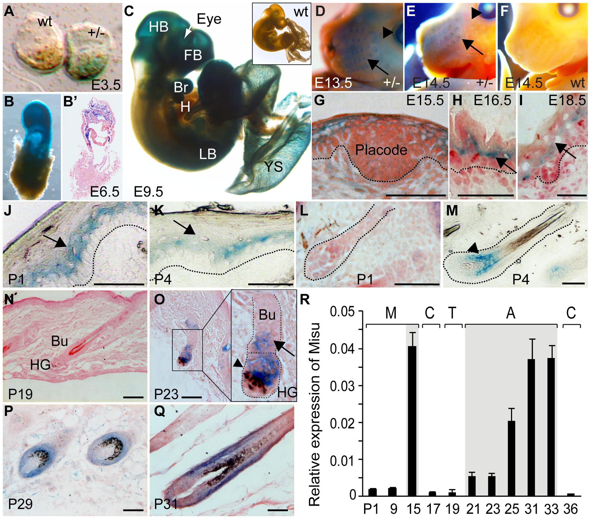 Expression of Misu during embryogenesis, skin morphogenesis, and in adult epidermis.