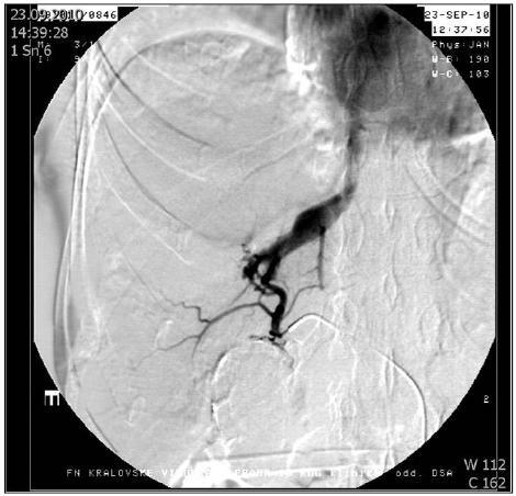 Arteriografie jaterní tepny: Arteriovenózní píštěl ošetřena embolizací