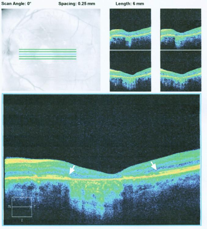 Obr. 2b. HD OCT levého oka: Na optickém průřezu plochy makuly je souvislý defekt RPE. V makule chybí vrstva junkce IS/OS fotoreceptorů- okraje jejího defektu označeny šipkami
